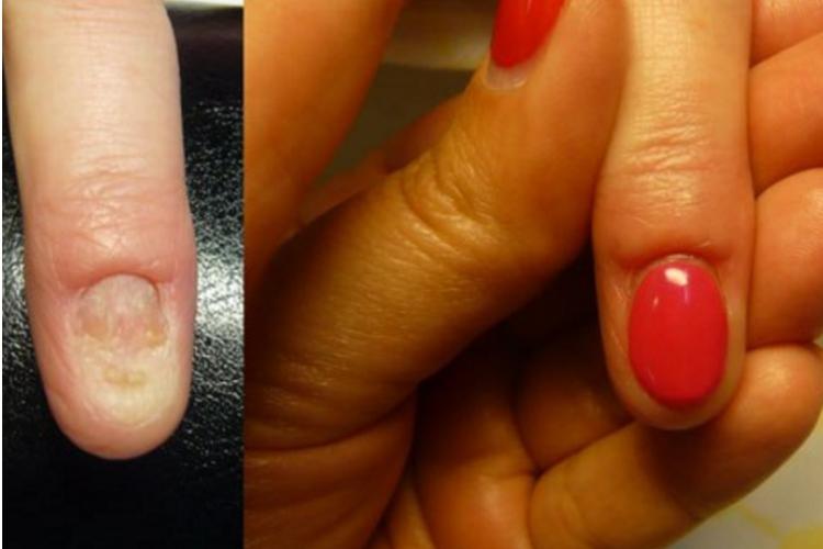 Как полечить ногти после наращивания